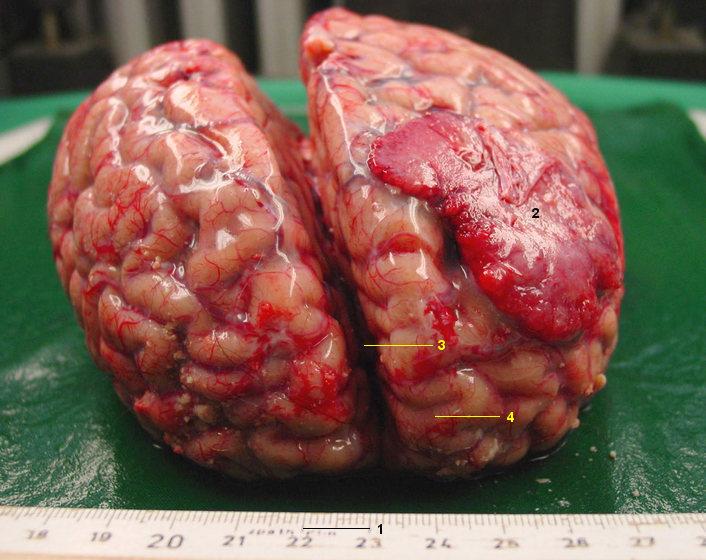 steroid meningitis outbreak michigan